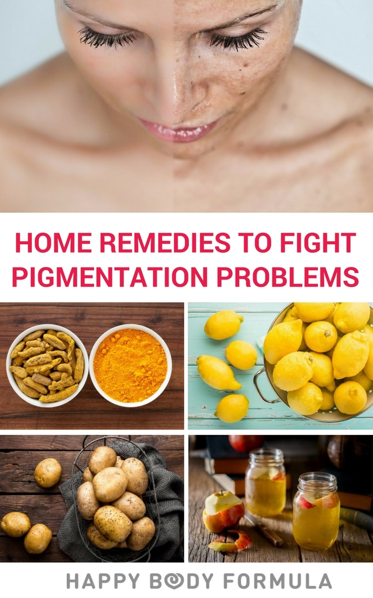 DIY Home Remedies to Fight Skin Pigmentation Problems - Natural, Safe Skincare for Discolouration, Dark Spots, & Blemishes