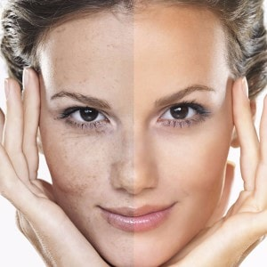 Home Remedies to Fight Skin Pigmentation Problems